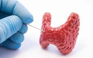 Choroby tarczycy - niedoczynność i nadczynność