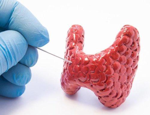 Choroby tarczycy – niedoczynność i nadczynność