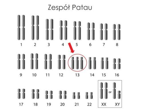Zespół Patau