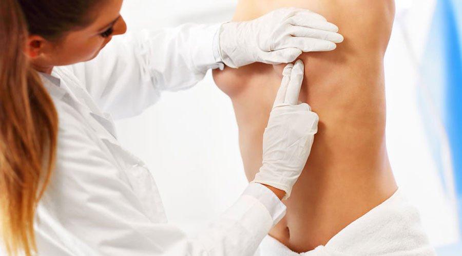 Fizjoterapia przed mastektomią