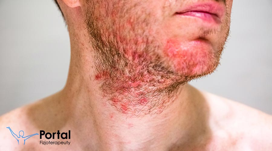 Łojotokowe zapalenie skóry