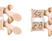 Osteopenia a osteoporoza – jak dbać o mocne kości?
