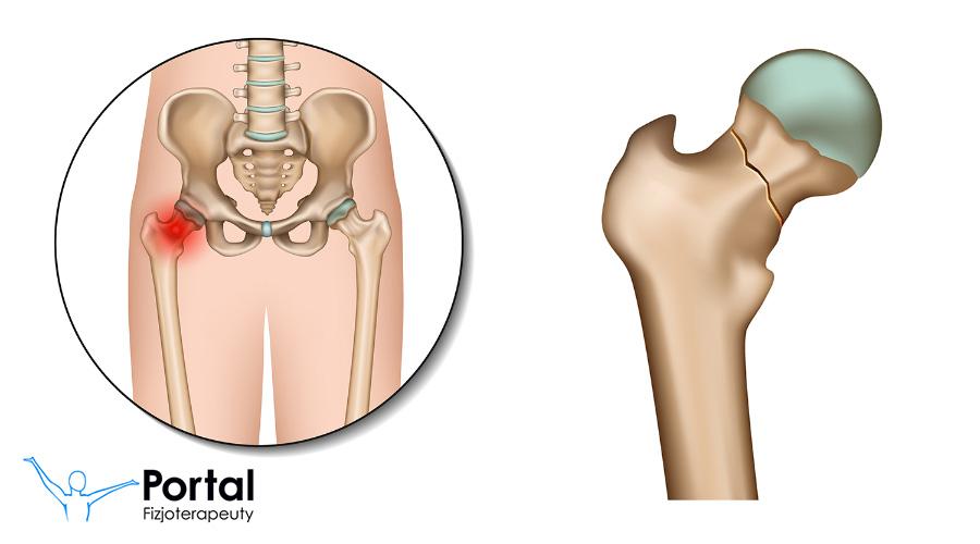 Złamanie szyjki kości udowej