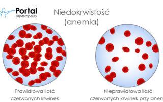 Niedokrwistość (anemia)
