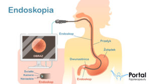 Endoskopia