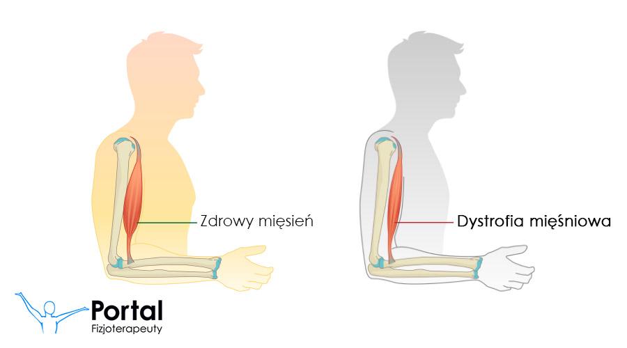 Dystrofia mięśniowa