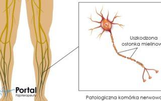 Neuropatia obwodowa