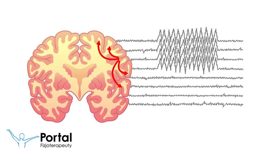 Epilepsja