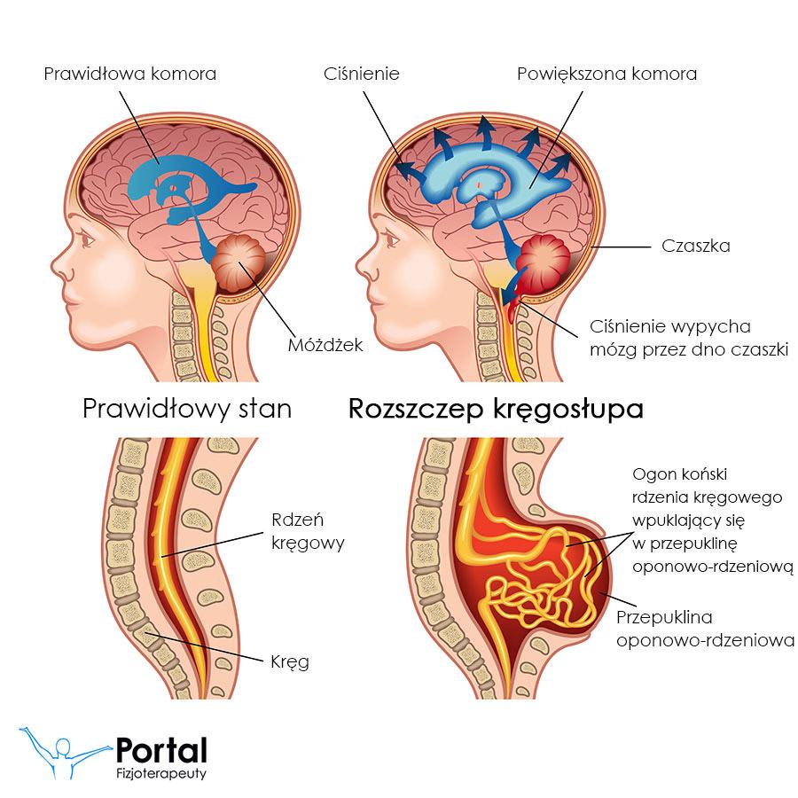 Rozszczep kregosłupa
