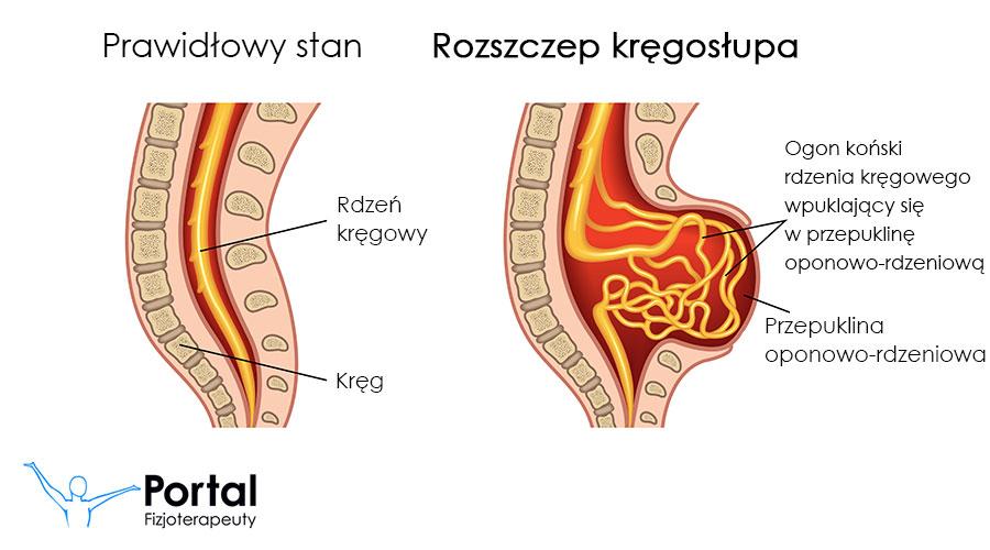 Rozszczep kręgosłupa