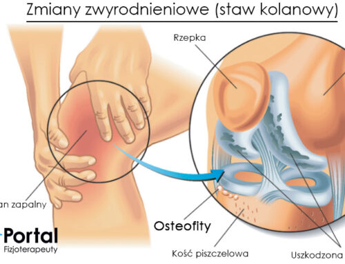 Osteofity