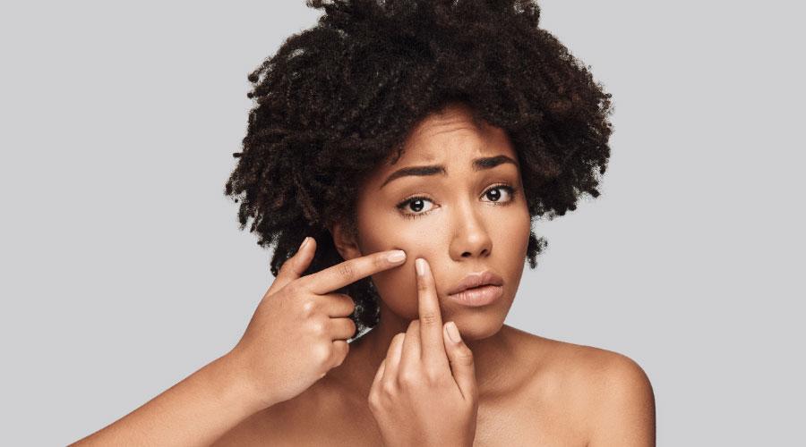 Jak pozbyć się trądziku na twarzy?