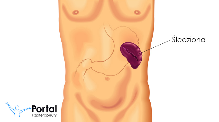 Splenektomia