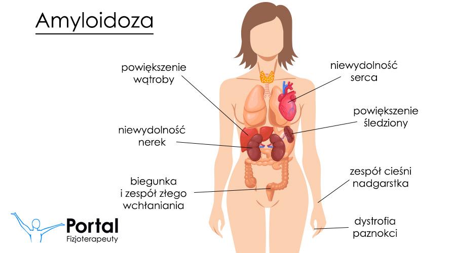 Amyloidoza