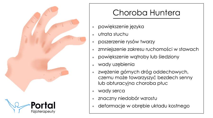 Choroba Huntera