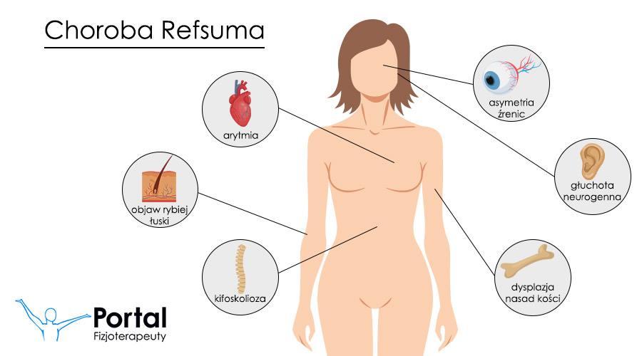 Choroba Refsuma