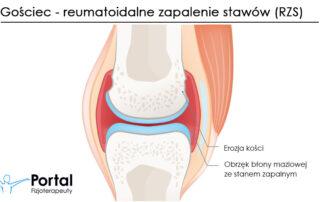 Gościec - reumatoidalne zapalenie stawów (RZS)