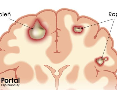 Ropień mózgu