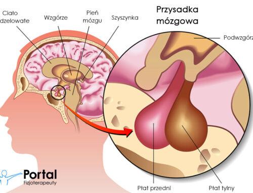 Choroby przysadki mózgowej