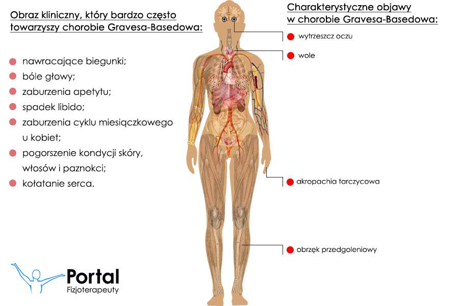 Choroba Gravesa-Basedowa