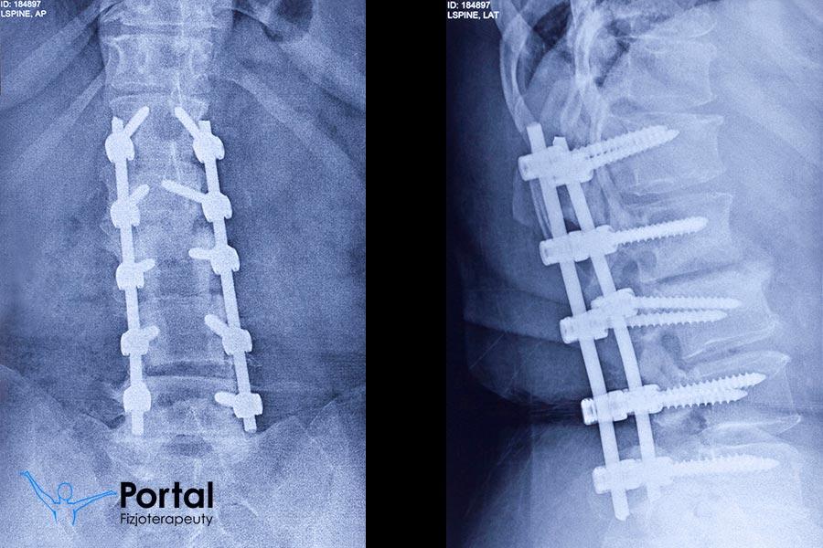 Stabilizacja kręgosłupa